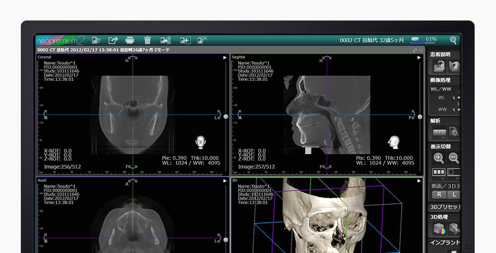 デジタル画像情報ソフトウェア「NEOPREMIUM2」